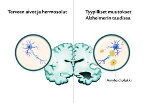 Suomen Seniorihoiva - Alzheimerin tauti ensioireet - Alzheimerin taudin ensioireet - Alzheimer oireet - Alzheimer ensioireet