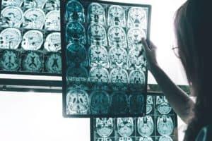 Suomen Seniorihoiva - Alzheimerin tauti ensioireet - Alzheimerin taudin ensioireet - Magneettikuvaus