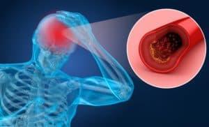 Vanhusten yleisimmät sairaudet - Aivoverenkiertohäiriöt - Verisuoniperäinen muistisairaus - Aivohalvaus - Aivoinfarkti - Aivoverenvuoto