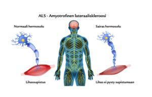 Suomen Seniorihoiva - ALS-tauti - Amyotrofinen lateraaliskleroosi - ALS tauti oireet - ALS tauti ensioireet - ALS sairaus oireet