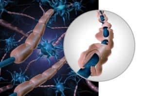 MS-tauti - MS tauti oireet - MS tauti ensioireet - Neurologiset sairaudet