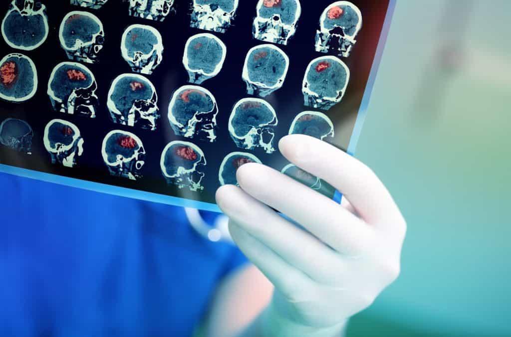 suomen seniorihoiva - aivosyöpä - aivokasvain oire - aivokasvaimet oireet elinaika
